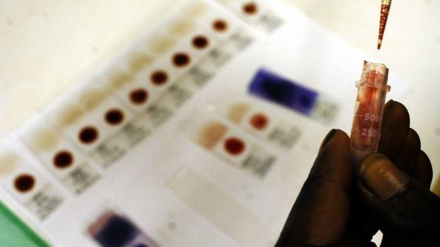 Día mundial de la malaria: sus síntomas y cómo se puede prevenir